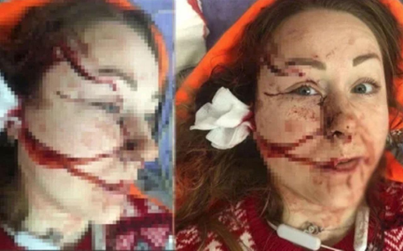 Falçatayla dehşet saçtı yüzünü doğrayıp parçaladı! 'İyi hal indirimi' uygulandı işte cezası