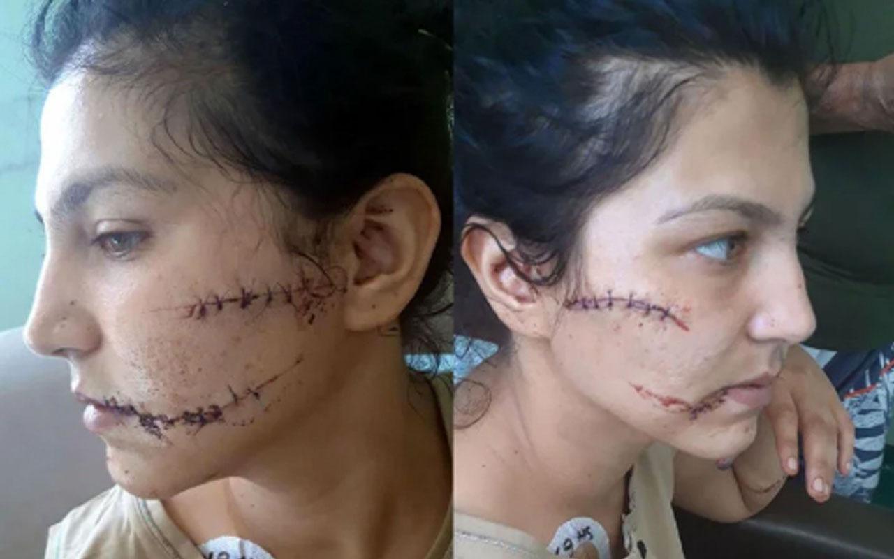 Abdest alıp dehşet saçtı! Başında şişe kırdı 104 yerinden bıçaklandı! Yaşadığı dehşeti anlattı