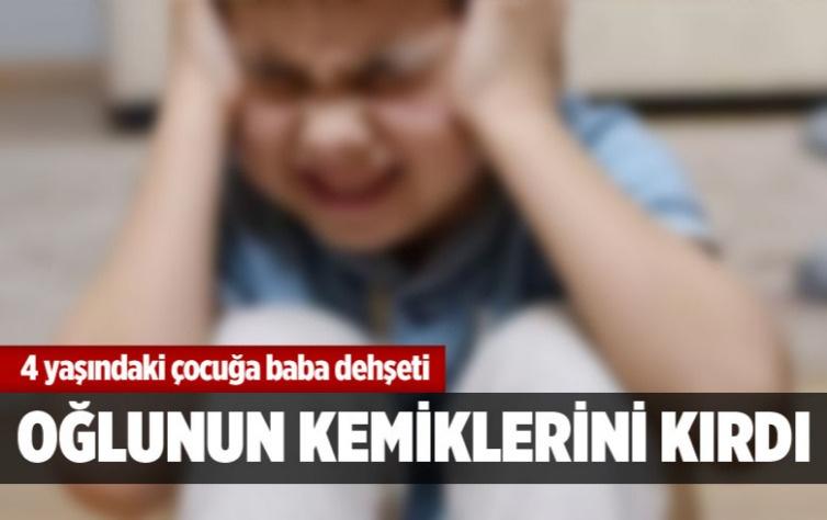 Baba dehşeti! 4 yaşındaki oğlunun kemiklerini kırdı!